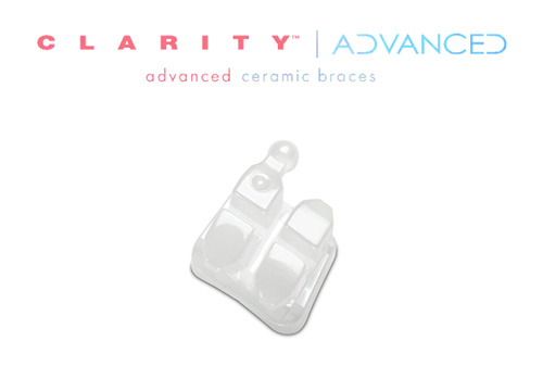 https://orthodontics.net/wp-content/uploads/2017/06/clarity-ceramic-braces.jpg