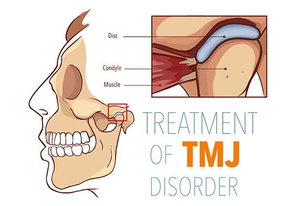 https://orthodontics.net/wp-content/uploads/2019/01/TMJ.jpg